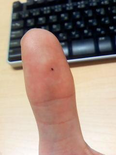 mole-of-thumb